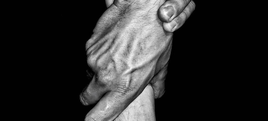 手の甲や指毛 濃い男性の場合はレーザー脱毛施術一択!