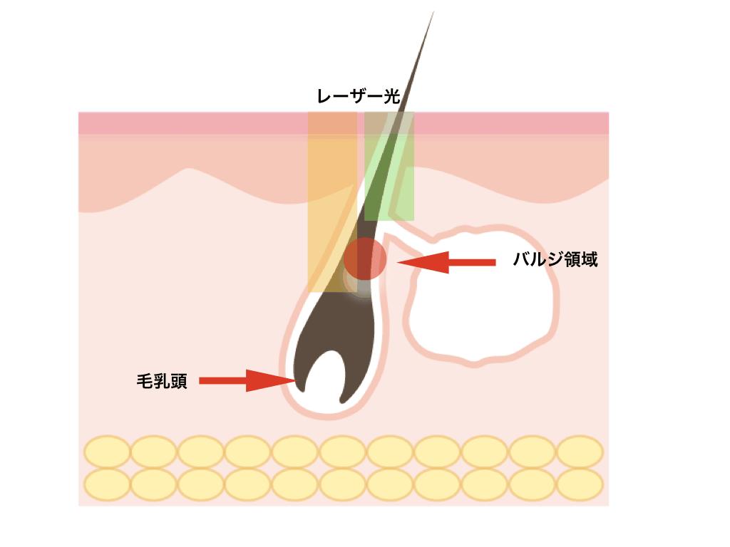 蓄熱式(SHR式)のレーザー脱毛器の脱毛効果には疑問符も?