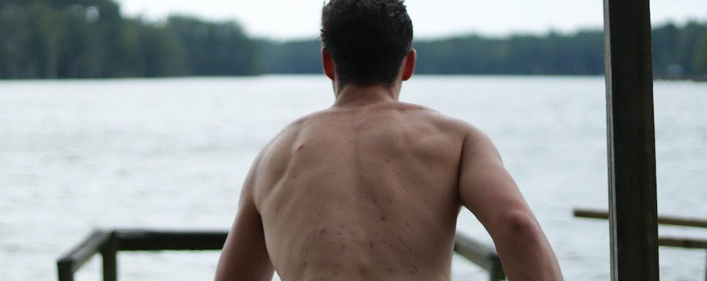 背中の肌荒れ・吹き出物 そのままでもレーザー脱毛可能?