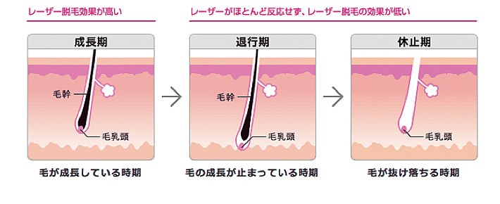 レーザー脱毛では、そこに毛がなければ熱を浸透させられない